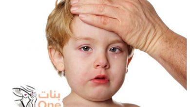 أعراض التهاب السحايا للأطفال والرضع