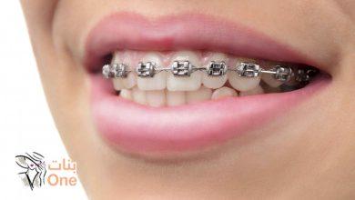 أنواع تقويم الأسنان لتختاري منها ما يناسبك