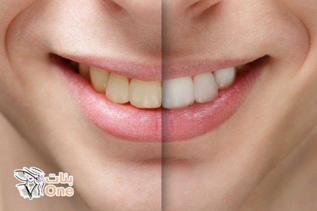 أضرار تبييض الأسنان بالليزر