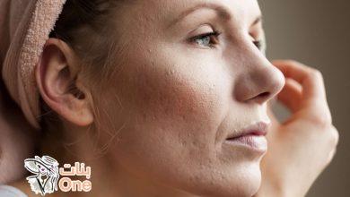 أسباب ظهور الندبات في الوجه