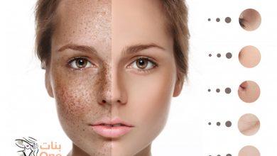 ما علاج تصبغات الوجه