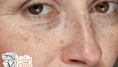 سبب ظهور بقع بنية على الوجه