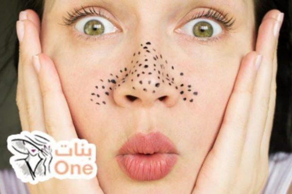 طرق إزالة الحبوب السوداء من الوجه