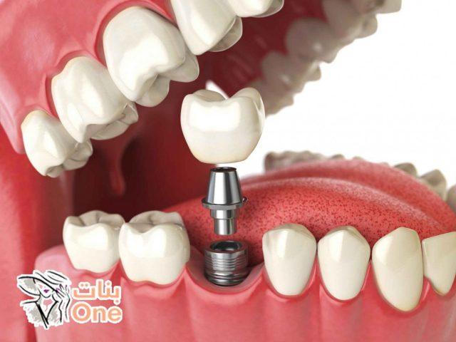 أسباب سقوط الأسنان وطرق علاجها