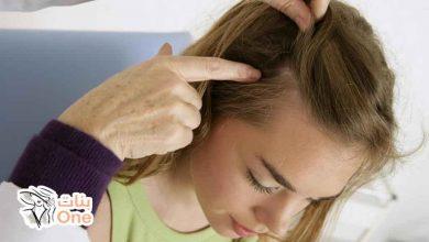 طرق علاج فطريات الشعر