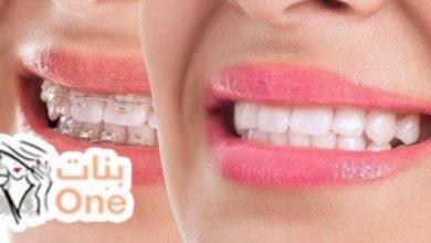 كيف أنظف تقويم الأسنان