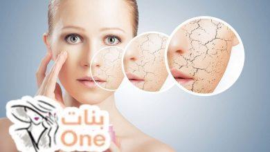 كيفية التخلص من قشرة الوجه وأسبابها