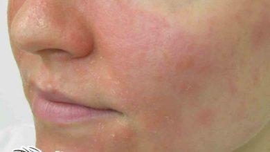 كيفية علاج التهاب بشرة الوجه الدهنية