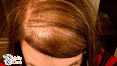أسباب وجود فراغات في الشعر وطرق علاجها بالوصفات المنزلية