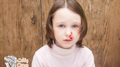 كيفية علاج نزيف الأنف عند الأطفال