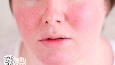 أسباب احمرار الوجه وسخونته