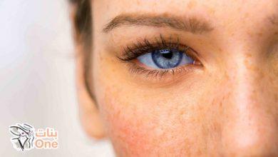 طرق إزالة النمش من الوجه بمكونات طبيعية