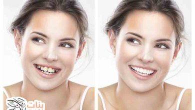 أفضل طرق تجميل الاسنان بدون تقويم