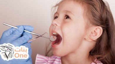 أعراض إلتهاب اللثة عند الأطفال وعلاجها