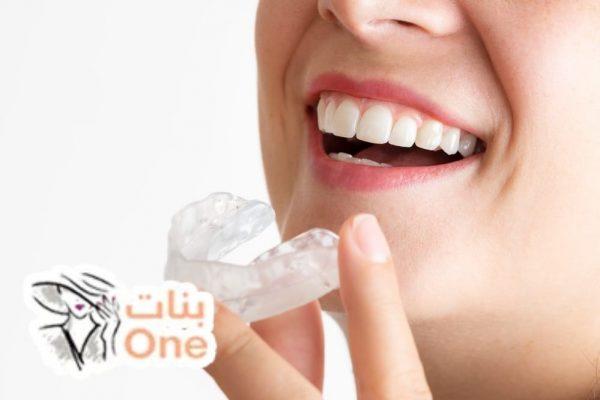 طريقة تلبيس الأسنان ومميزاتها