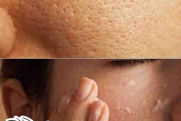 أفضل طريقة لغلق مسامات الوجه