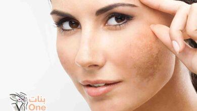 أفضل وصفة لعلاج كلف الوجه