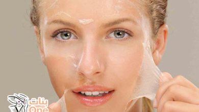 أفضل علاج تقشير الوجه آمن وفعال