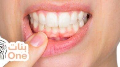 ما أسباب تقرحات الفم وعلاجها