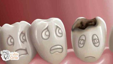 أسباب تسوس الأسنان عند الكبار