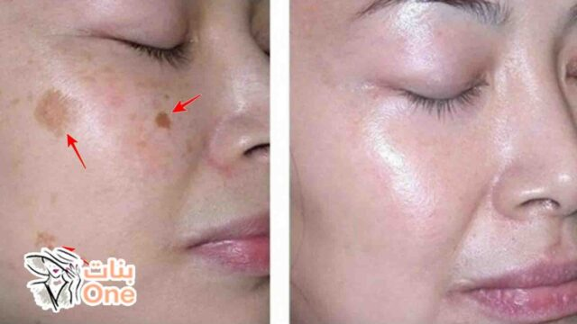 كيفية إزالة البقع السوداء من الوجه بطريقة طبيعية
